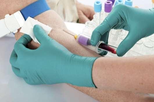 Аналіз крові замість алкотестера? Навіть якщо ви тверезий, вони все одно відберуть у вас права