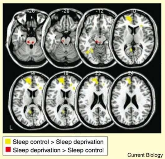 Скільки нам потрібно сну, щоб бути продуктивними?